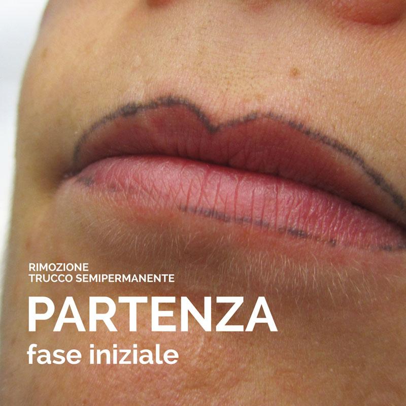 Rimozione tatuaggio Brescia